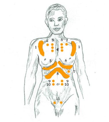 Erste Hilfe bei Muskelschmerzen